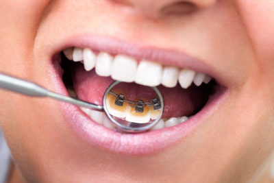 Zahnarzt_Frueh_Homepage_Behandlungen_Zahnaesthetik