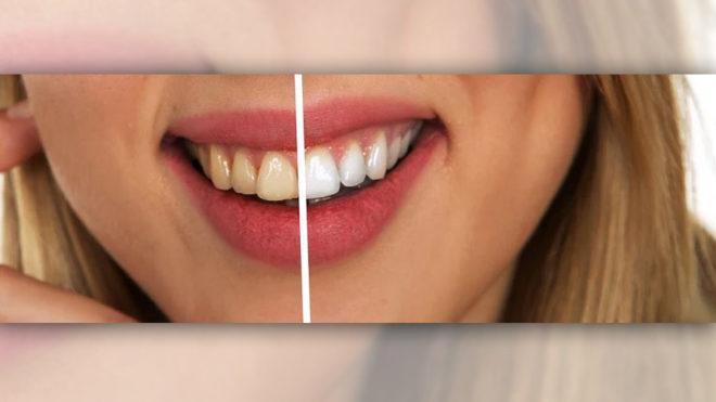 """Beautiful Smile"" – Bleaching"